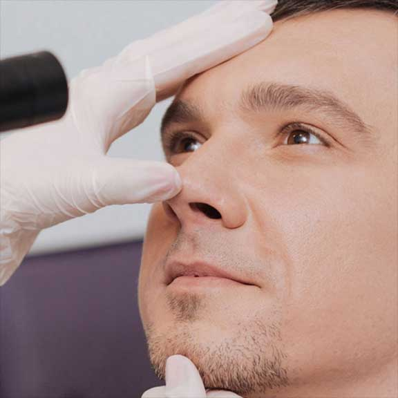Nose Doctor in Carlsbad, CA